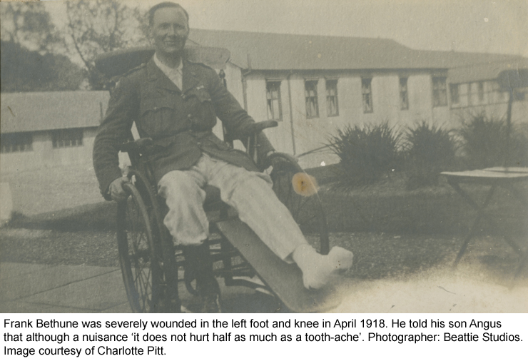 Frank Bethune in April 1918, wounded in the left foot and knee.